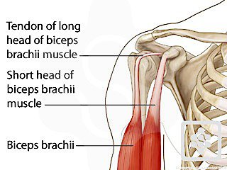 Displaced Biceps Tendon & Shoulder Pain